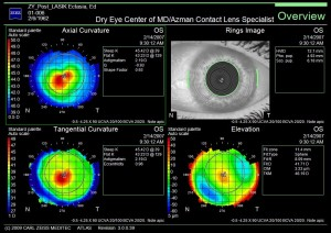 Corneal Wavefront Topography